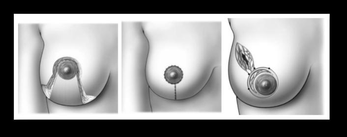 Органосохраняющие операции при раке груди 1