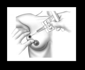 Трепанобиопсия опухоли 3