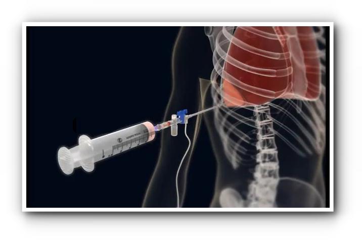 Пункция и дренирование плевральной полости 1