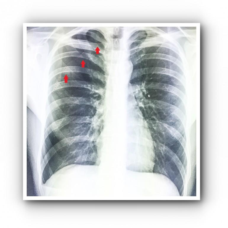 Типичный спонтанный пневмоторакс 2