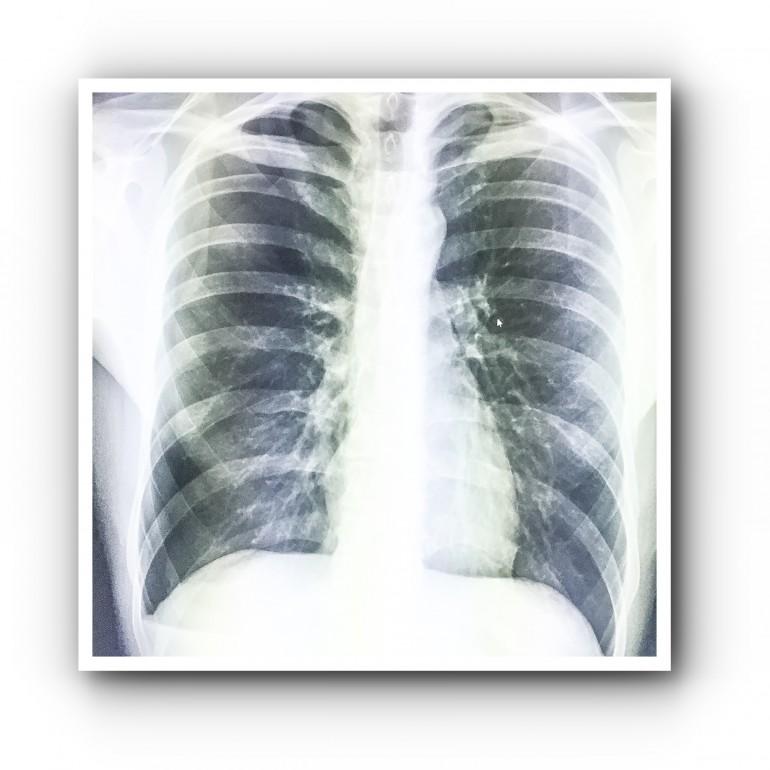 Типичный спонтанный пневмоторакс 3