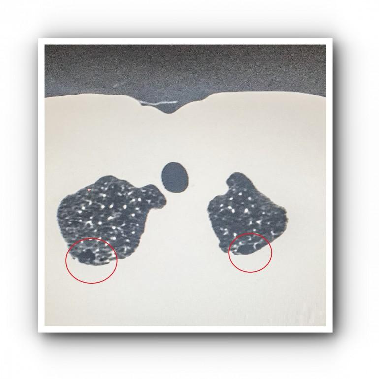 Типичный спонтанный пневмоторакс 4