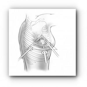Торакоскопия — видеохирургическое вмешательство в грудной полости 1