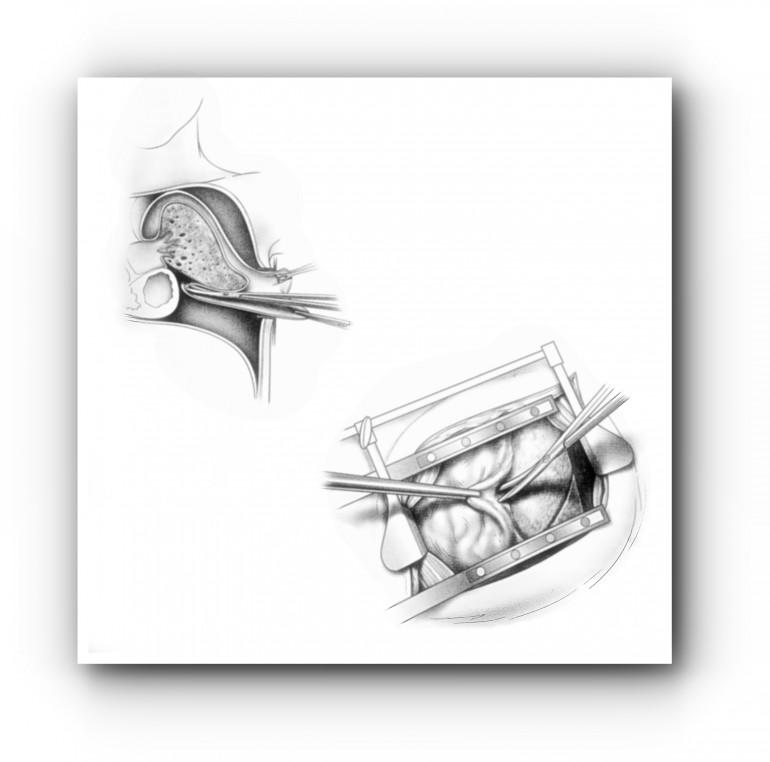 Операции на плевре 1