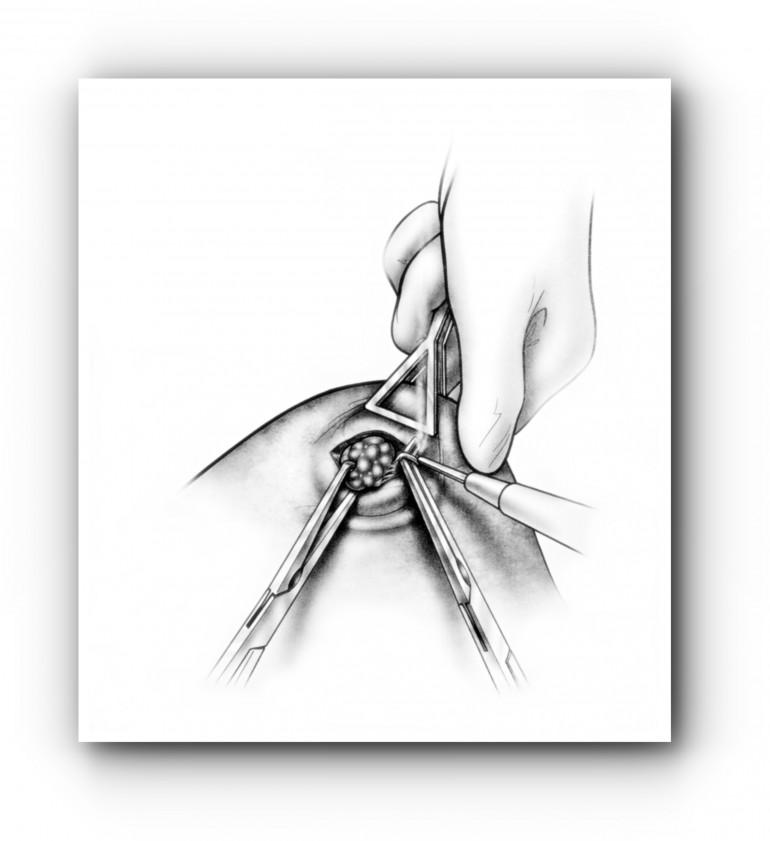 Удаление метастазов лёгких 1