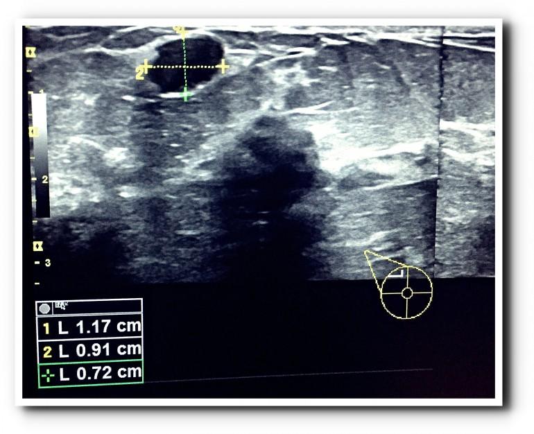 Удаление фиброаденомы молочной железы 2
