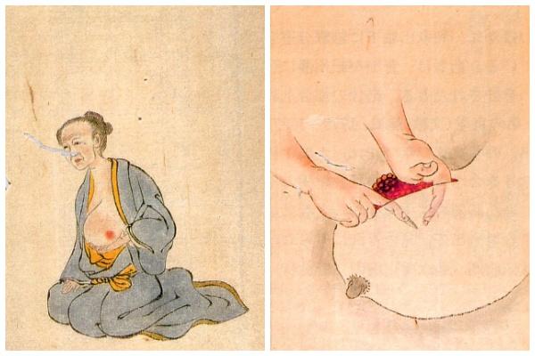 История медицины — анатомия в Японии 7
