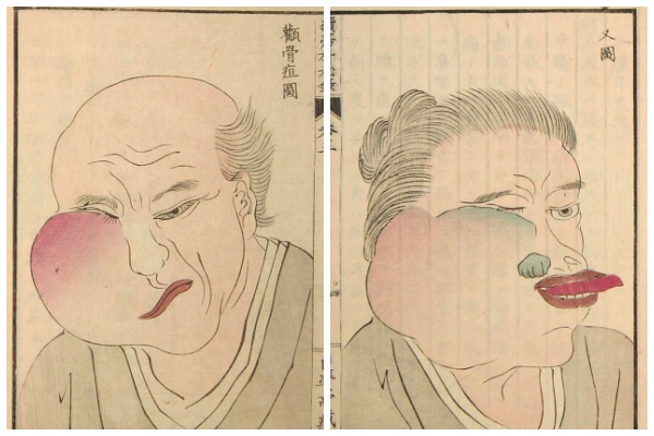 История медицины — анатомия в Японии 9