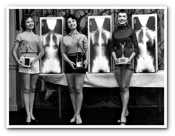 %22miss-idealnyj-pozvonochnik%22-1956-chikago-v-ramkax-programmy-populyarizacii-rentgenografii